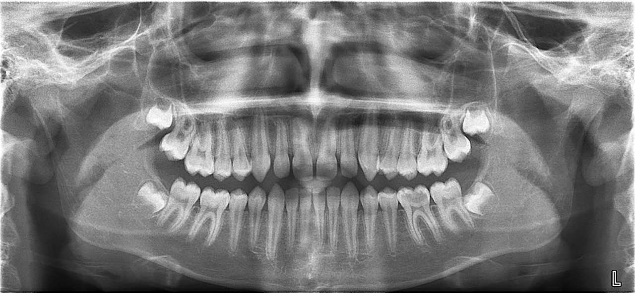 панорамные снимки зубов